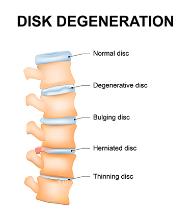 Degenerative-disc-disease-caused-by-car-accident