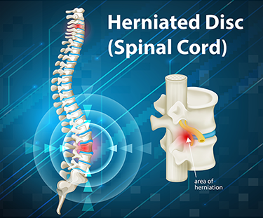 Herniated Disc c4-c5 Settlements [Sutliff & Stout, Injury