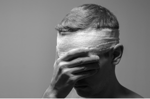 Houston Concussion Accident Lawyers
